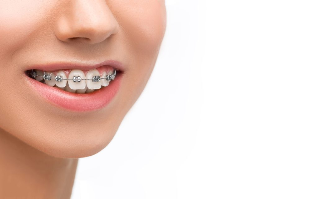 Orthodontic CE Courses